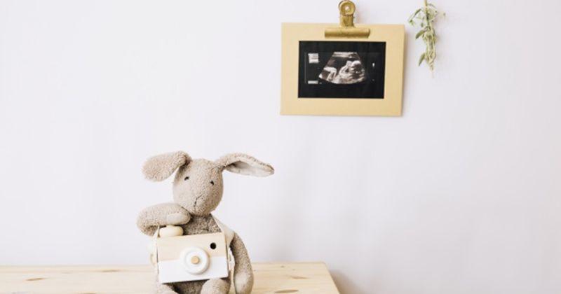 5. Bikin Surprise Memajang Hasil USG Bayi