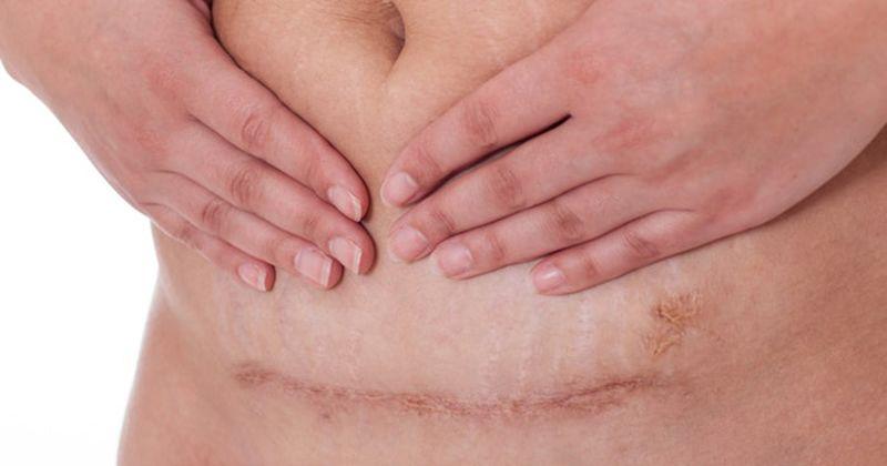4. Mayoritas dilahirkan melalui operasi caesar