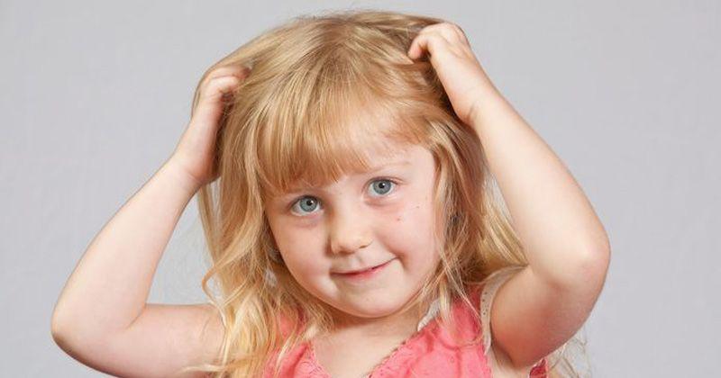 8 Fakta Tentang Serangan Kutu Rambut
