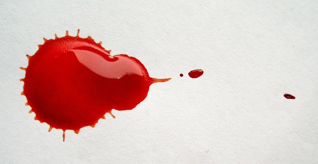 2. Anak mudah lebam berdarah