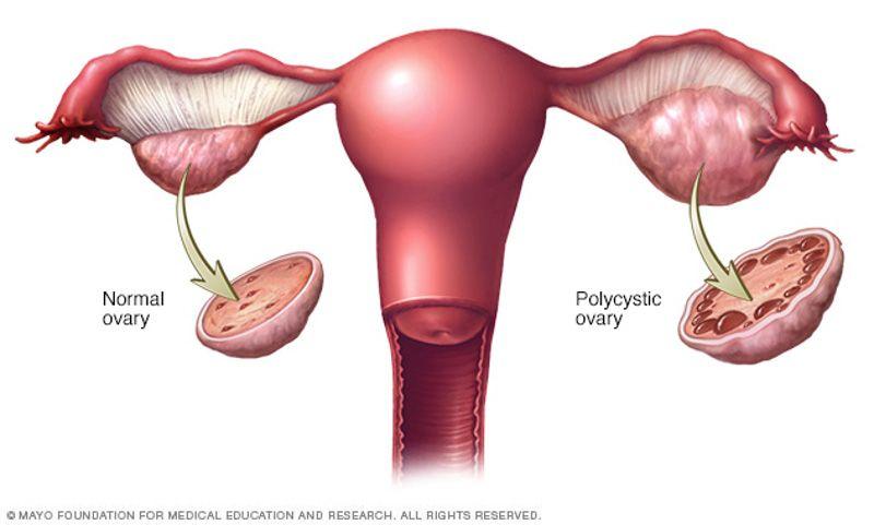 4. Sindrom ovarium polikistik