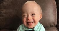 5 Hal Tentang Lucas, Bintang Iklan Gerber Down Syndrome