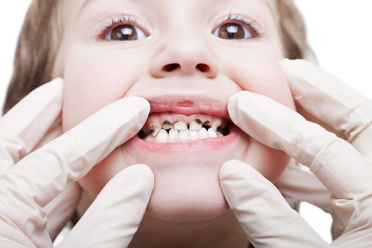 4. Jangan membiarkan gigi keropos terlalu lama