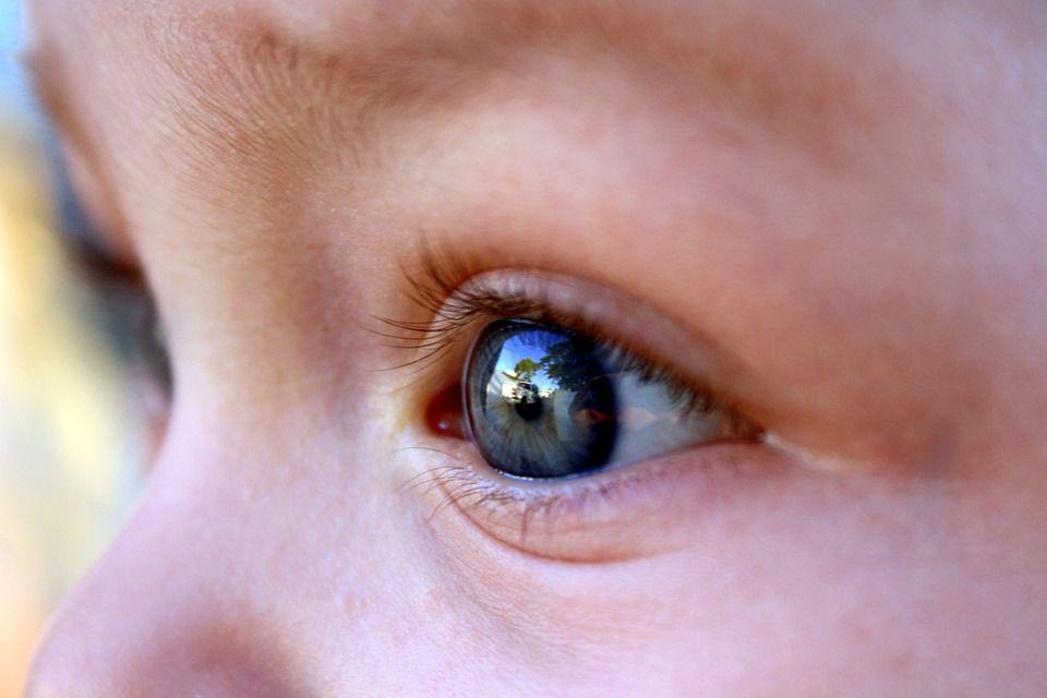 3. Cek kondisi mata si Kecil