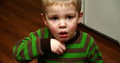7 Jenis Batuk Anak Cara Penanganan Tepat