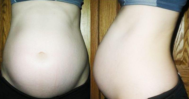 10. Mencegah stretch mark saat hamil