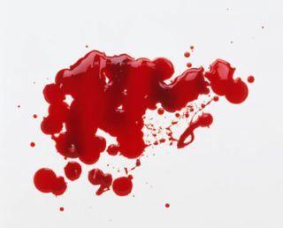 2.Volume darah lebih sedikit dibandingkan darah menstruasi