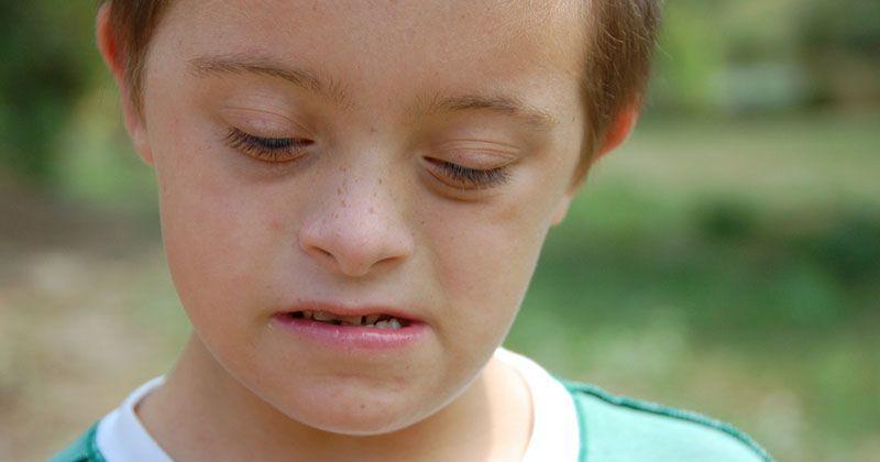 5. Si Anak Berkebutuhan Khusus