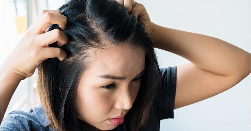 1. Penyebab rambut rontok masa awal kehamilan