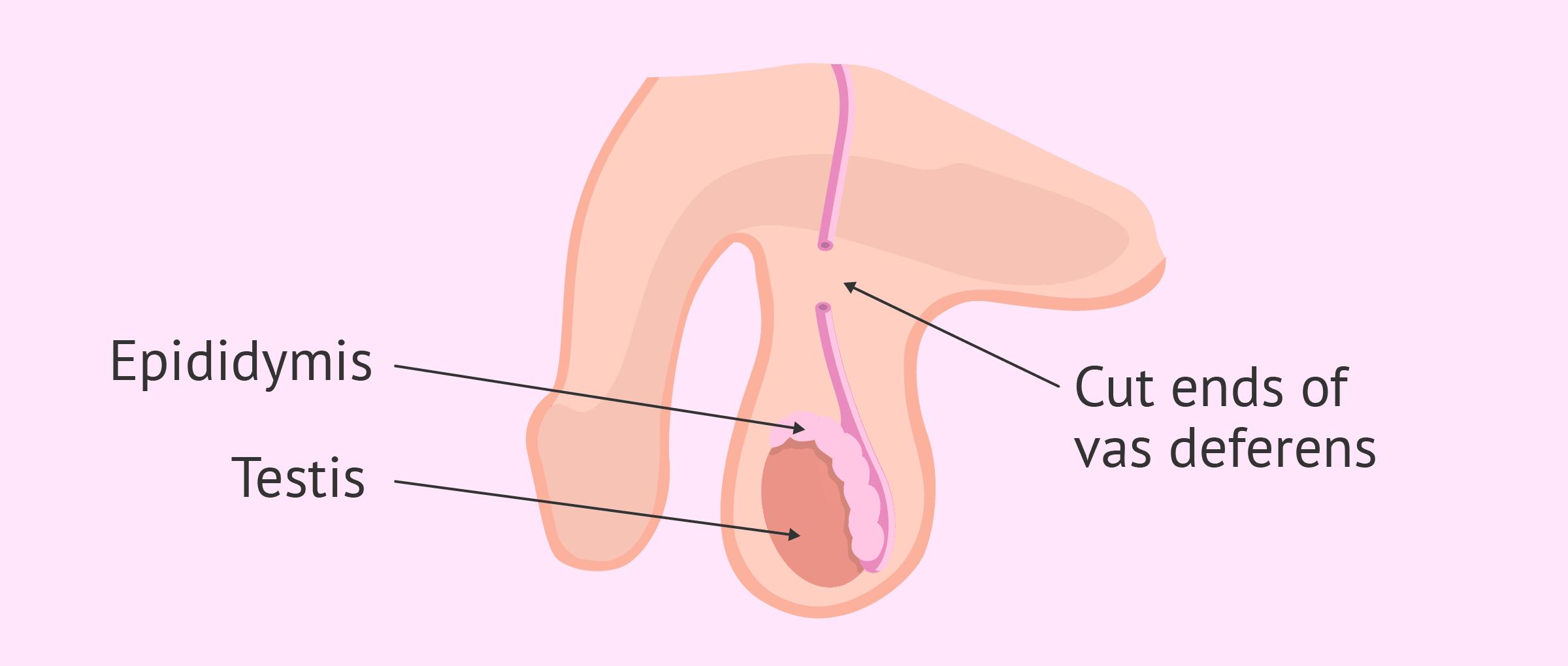 5. Vasektomi