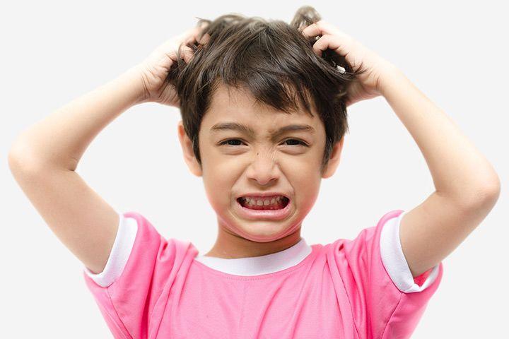 3. Jerawat kulit kepala