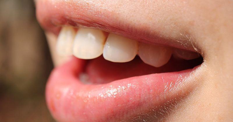 3. Obat sariawan bau mulut
