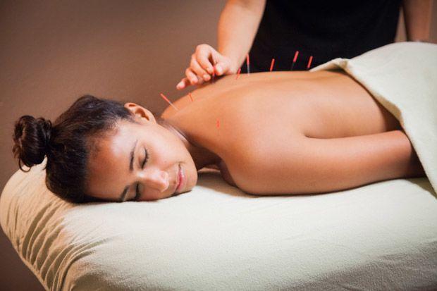 2. Beragam studi tentang manfaat akupuntur saat menjalani IVF