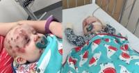 Lihat, Ini Terjadi Jika Mama Tidak Melakukan Imunisasi Anak
