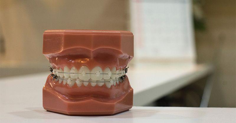 5. Beritahukan dokter gigi jika sedang dalam kondisi hamil
