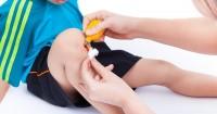 Awas Infeksi Mengancam Ini Cara Penanganan Pertama Atasi Luka Anak