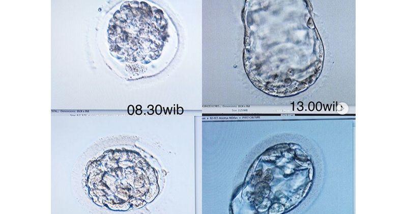3. Pu dua embrio