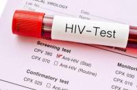 1. HIV