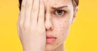1. Berpotensi memicu alergi ibu hamil