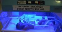 Cara Mengatasi Bayi Kuning