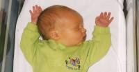 Perubahan Warna Kulit Bayi Menjadi Kekuningan