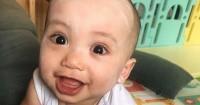 Penyebab Dermatitis Atopik Dialami Xabiru Bayi Rachel Vennya