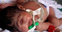 Cara Mencegah Terjadi Kelahiran Bayi Bermata Satu Alias Cyclopia