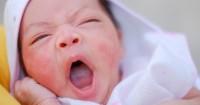Lebih Sering Menyerang Anak Perempuan Ini 7 Fakta Eksim Susu