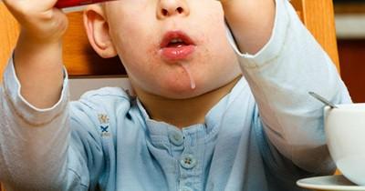 Pijat Gusi Hentikan Ngeces Anak 1 Tahun ke Atas