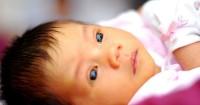 Jenis-Jenis Penyakit Kuning Bayi Perlu Mama Pahami
