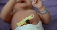 8 Cara Tepat Merawat Tali Pusar Bayi Hingga Puput