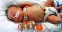 Waspada, Ternyata Bayi Juga Dapat Terserang Kanker