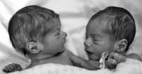 5 Cara Bijak Memperlakukan Anak Kembar