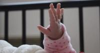 1. Penyebab bayi lahir tanpa tangan Prancis