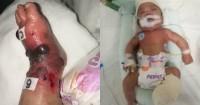Komplikasi Transfusi Darah, Kaki Bayi 4 Bulan Ini Harus Diamputasi