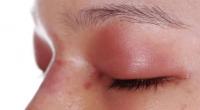 7. Mata bengkak karena alergi