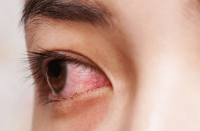 9. Rajin membersihkan mata bengkak