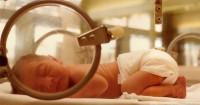 3. Cara memberikan ASI perah bayi prematur