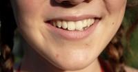 8. Facelift Dentistry