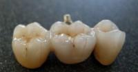5. Dental Crown & Bridges
