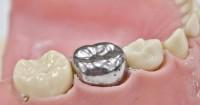 7. Dental Jewelry