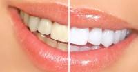2. Teeth Whitening