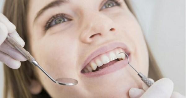 Perawatan Gigi Yang Bisa Buat Senyum Kamu Semakin Menawan Popmama Com