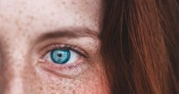 7 Cara Alami Menghilangkan Flek Hitam Wajah Akibat KB