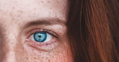 7 Cara Alami Menghilangkan Flek Hitam di Wajah Akibat KB