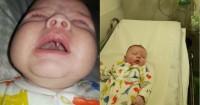 Dalam Semalam, Seorang Bayi 11 Minggu Tumbuh Gigi Taring