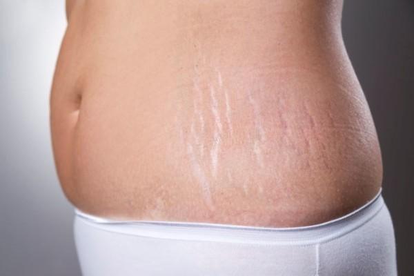 Pudarkan Stretch Marks Dengan Lidah Buaya Dan Minyak Kelapa Popmama Com