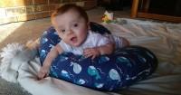 Akibat Penyakit Langka Sekali Bersin Saja Bayi Ini Bisa Patah Tulang