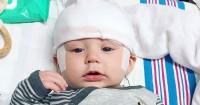 Epilepsi Langka Membuat Bayi ini Menangis 15 Jam Tanpa Henti