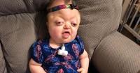 Waspada Sindrom Pfeiffer, Kelainan Gen Membuat Tengkorak Abnormal